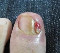 青岛专家介绍甲沟炎初期症状有迹可循