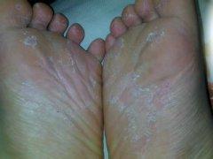 脚气患者在治疗药物上应当注意避免哪些事情呢?
