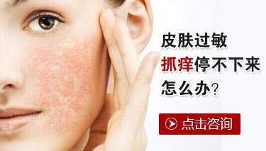 皮肤瘙痒症患者