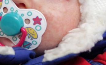 哪些食品容易引发儿童湿疹?