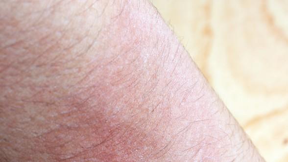 湿疹的致病因素有哪些