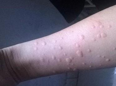 荨麻疹为何反复发作? 如何根治?